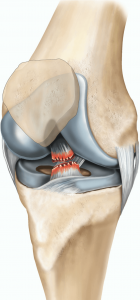 acl-reconstruction-illustration