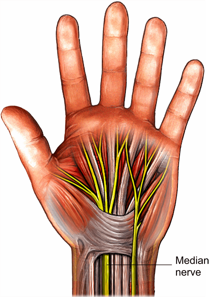 carpal-tunnel-illustration-of a hand