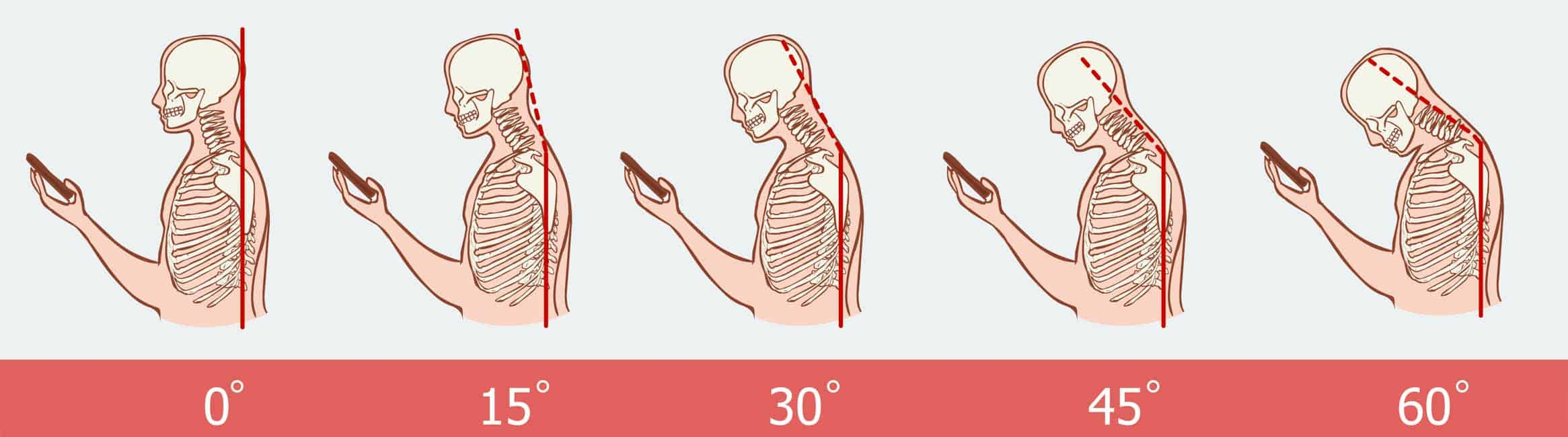 Tech Neck Diagram Physiotherapist-in-Sydney-that-can-help-with-neck-and-shoulder-pain-caused-by-too-much-smartphone-use